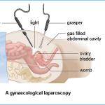 gynaecological laparoscopy
